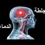 أعراض أولية تنذر بالإصابة بجلطة قبل حدوثها